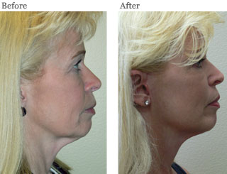 Lemke Facial Surgery Facelift Before and After Patient