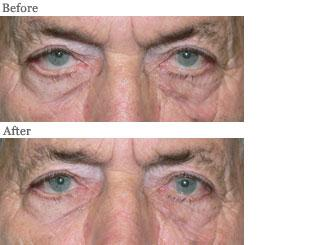 Lemke Facial Surgery Ectropian Eyelid Procedure Before and After