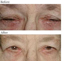 Lemke Facial Surgery Entropion Procedure Before and After