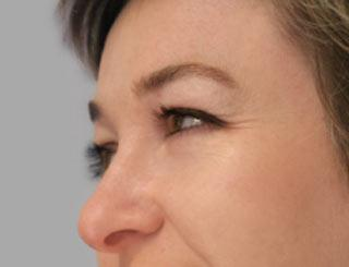 Lemke Facial Surgery Eyelid Retraction