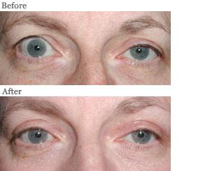 Lemke Facial Surgery Eyelid Retraction Procedure Before and After