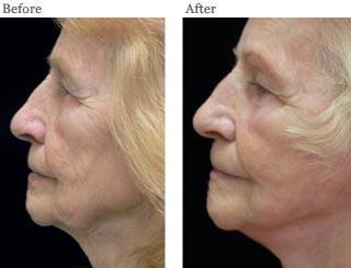 Lemke Facial Surgery Face Lift Before and After