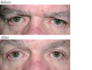 Lemke Facial Surgery Loose Eyelids Procedure Before and After