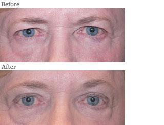 Lemke Facial Surgery Blepharoplasty Procedure Before and After