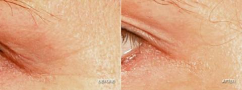Lemke Facial Surgery Pellevé Before and After