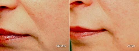 Lemke Facial Surgery Pellevé Before and After